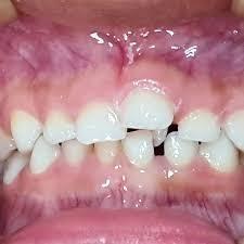 Fig 3. Anomalias que pueden presentarse debido a un mesiodent.