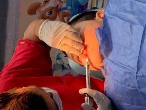 Fig. 4. Colocación de anestesia
